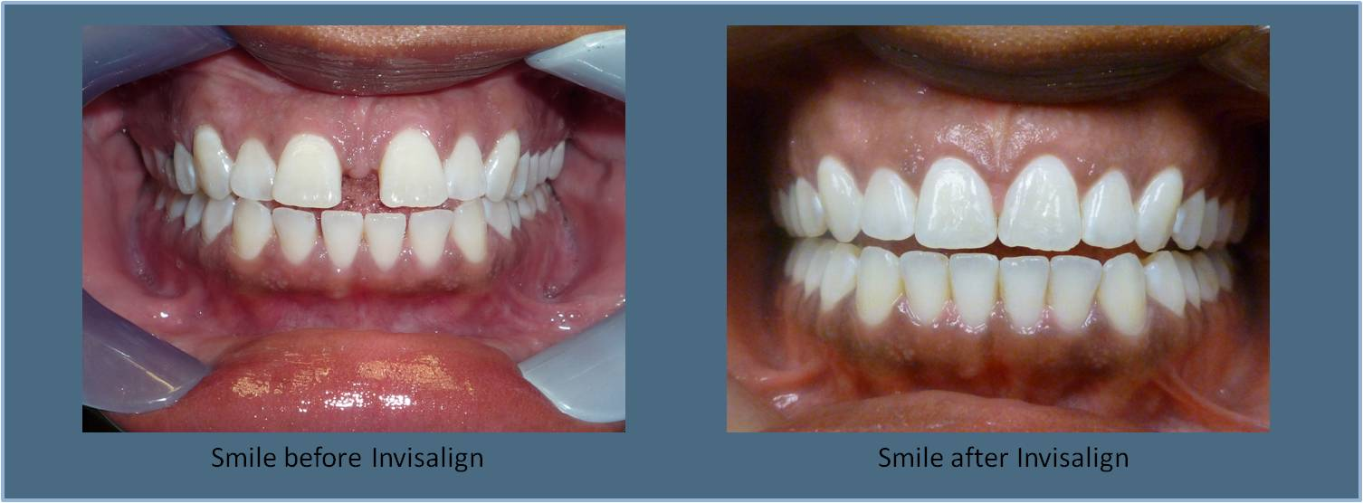 Invisalign Britt Dental Center Raleigh Nc