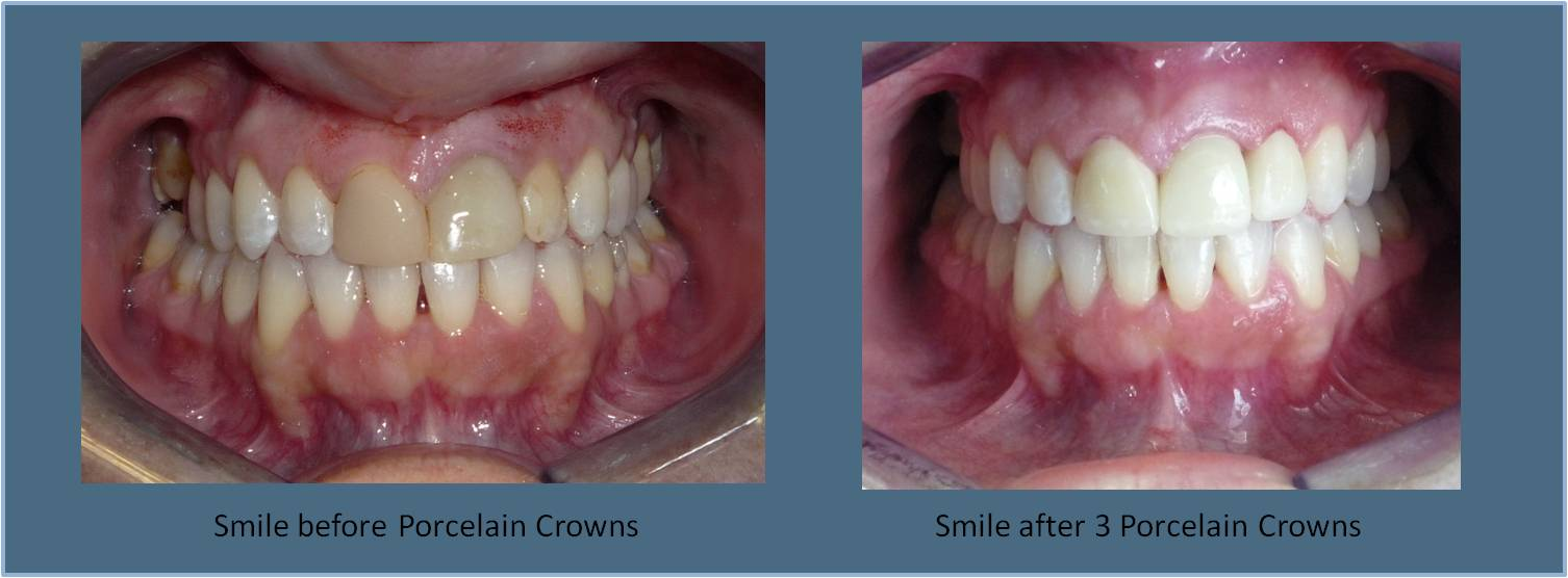 Porcelain Crowns  Britt Dental Center  Raleigh, NC Dentist