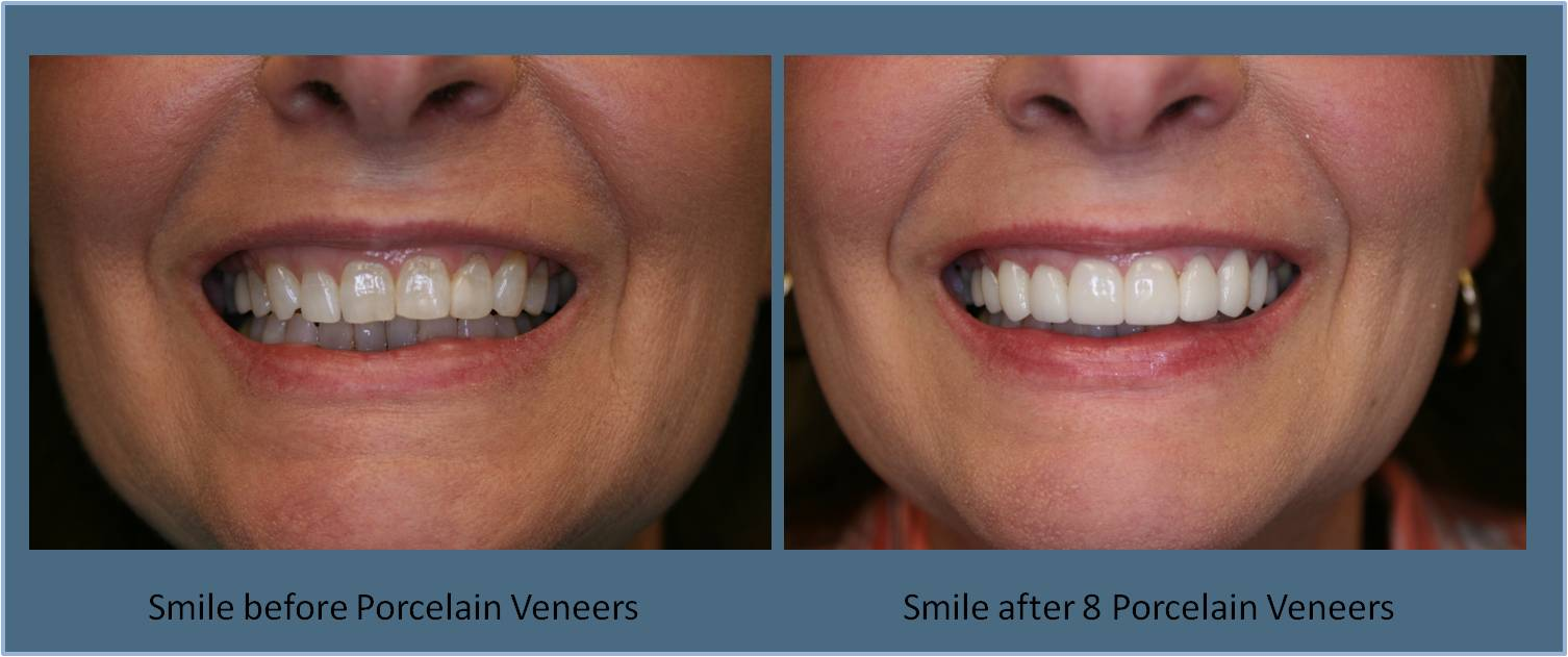 Porcelain Veneers | Britt Dental Center | Raleigh, NC Dentist
